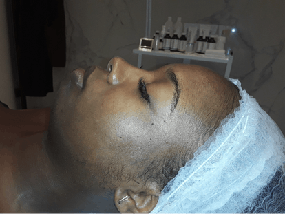 Skin Before Mango Peel Facial