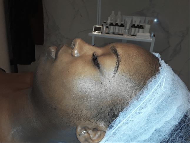 Skin Before Mango Peel Facial