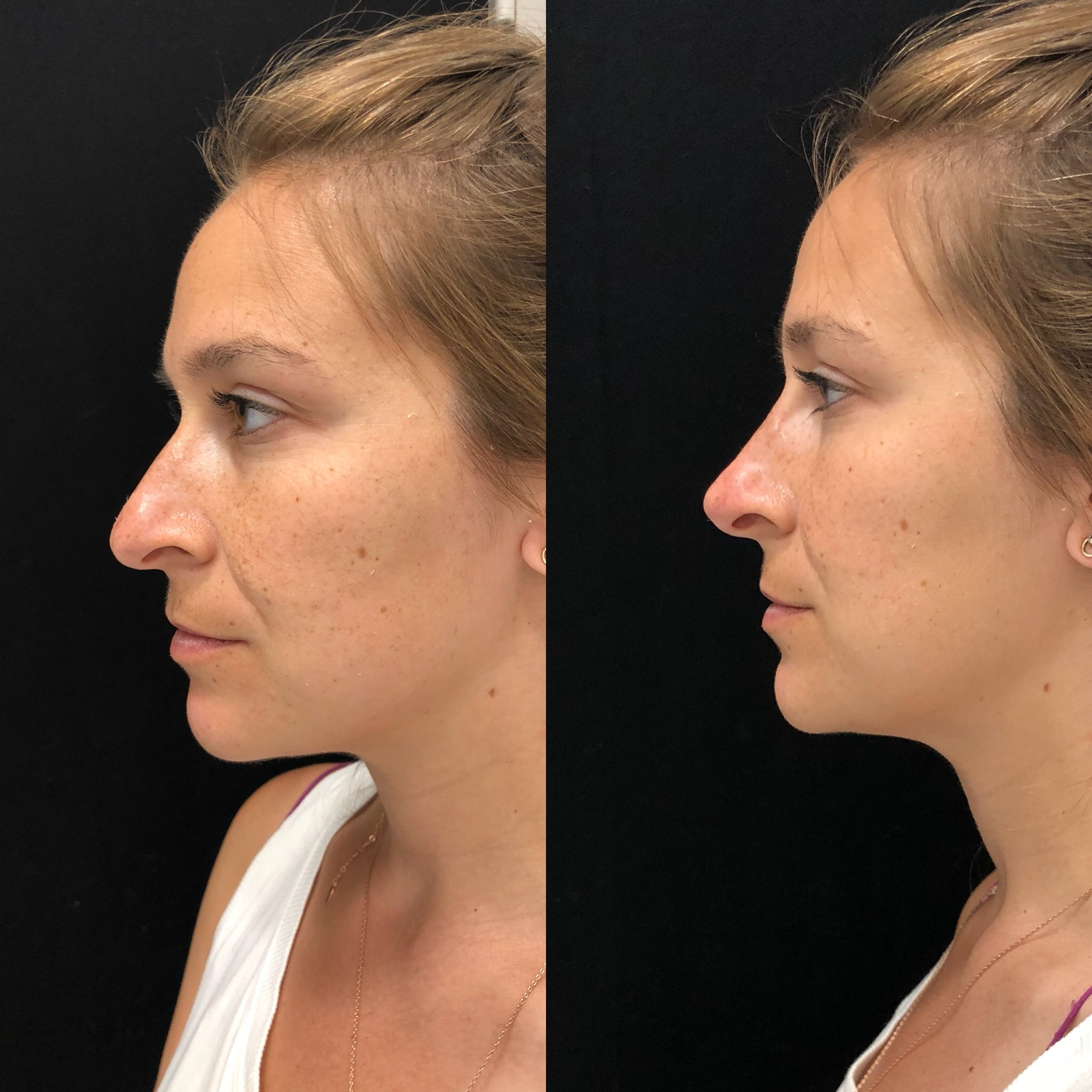 I Had A Nonsurgical Rhinoplasty The Results Blew Me Away