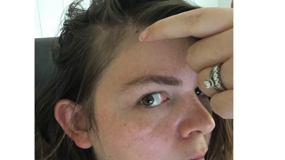when will postpartum hair loss stop