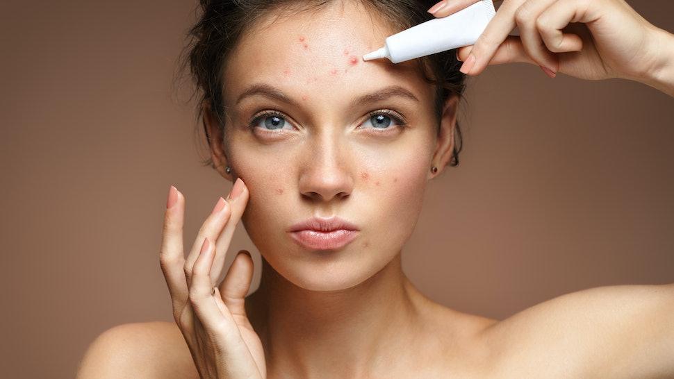 Hasil gambar untuk Dealing With Acne