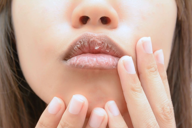 A person with very dry, cracked lips touches their face.