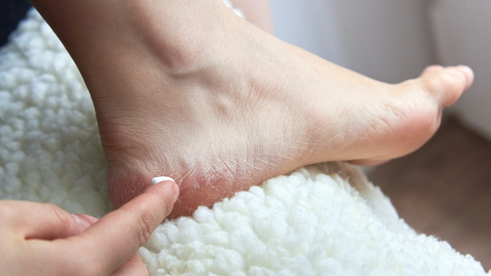 what is antifungal cream used for