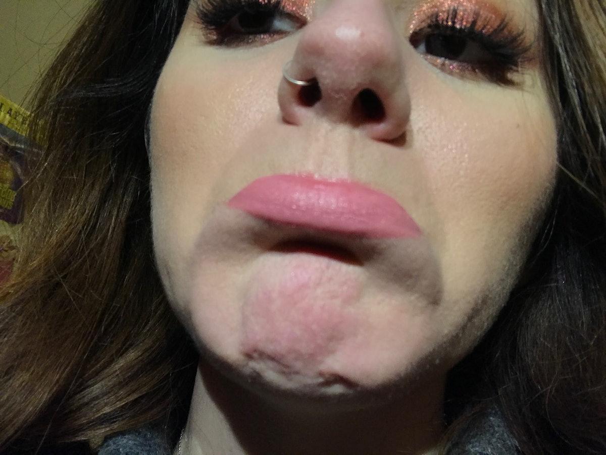 Writer Kimberly Carpluk showing beard burn on her sensitive skin after kissing