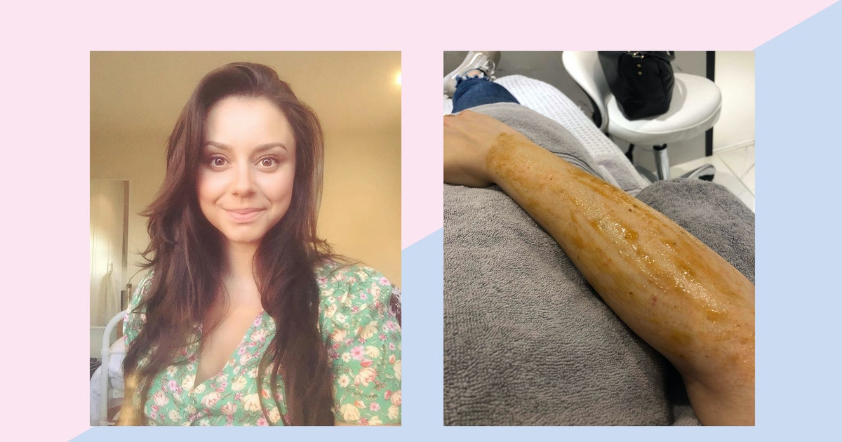 I've Had Keratosis Pilaris My Entire Life & These Are The Treatments That Work