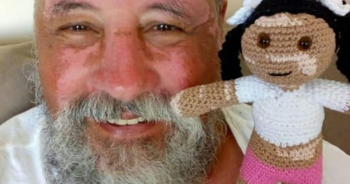 Grandpa With Vitiligo Crochets Sweet Dolls So Kids Can Feel Represented
