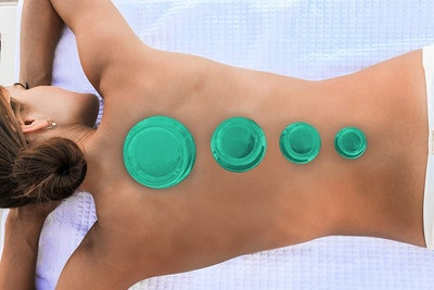 Lure Essentials EDGE Cupping Therapy Set (4 Cups)