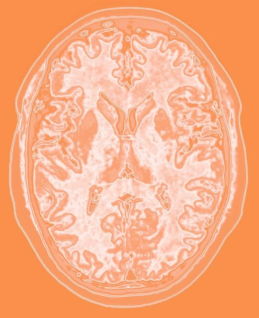 Brain scan.