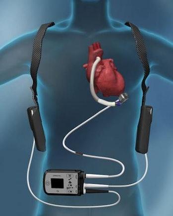 An Abbott HeartMate 3, a type of VAD.