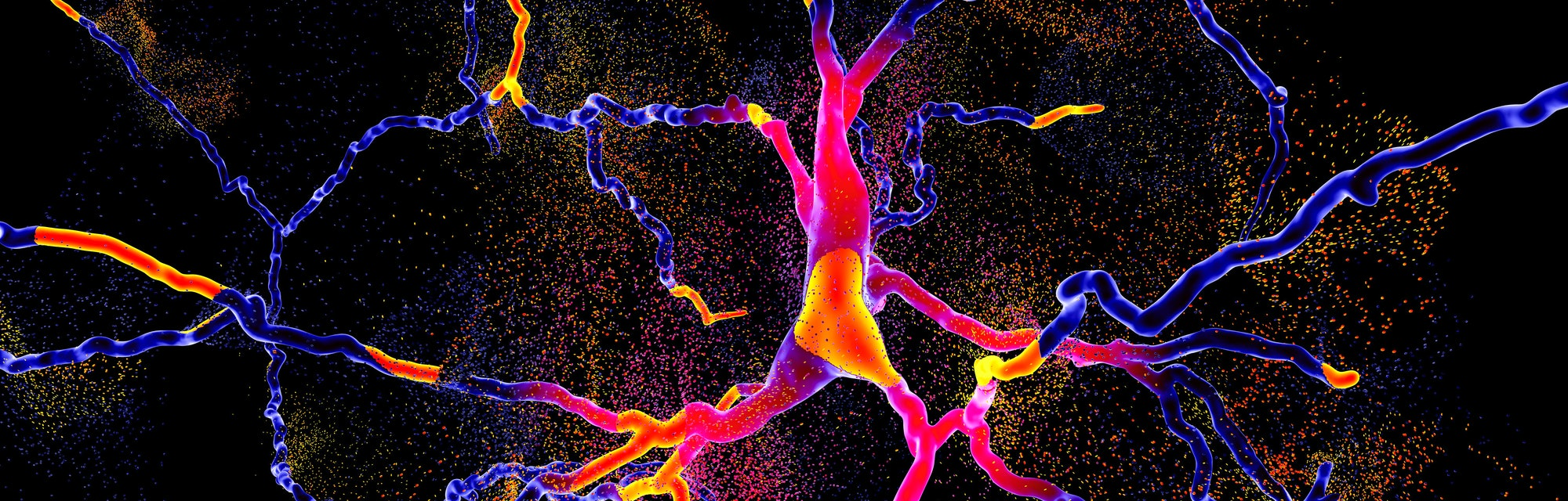 neuron degeneration in parkinson's disease