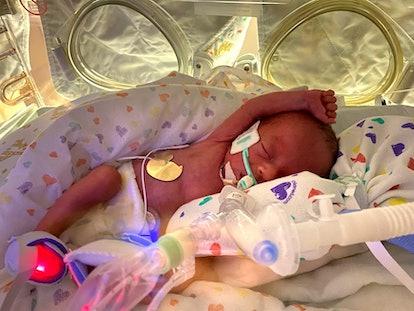 26 week old premature baby in nicu isolette