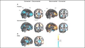brain scan consciousness