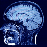 What is the origin of consciousness? Brain network study helps explain