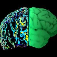"Brain scan study links social anxiety to an empathy ""imbalance"""