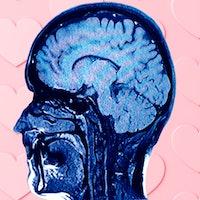 Brain scans show the secret to maintaining long-term love