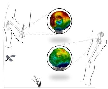 CT scans of two femur bones