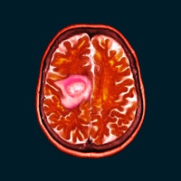 """A """"remarkable"""" finding links a common vitamin to fighting brain cancer"""