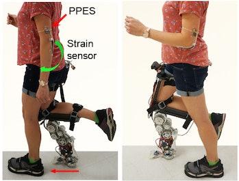 smart prosthetic
