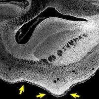 Scientists grew bigger monkey brains with a human gene