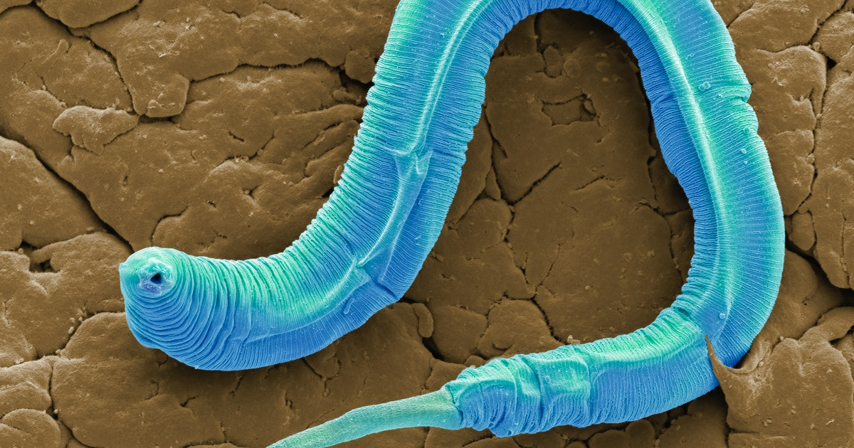 "A trick to activating ""anti-aging"" proteins in worms could exist in humans, too"