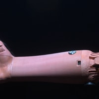 Smart, made-to-order limbs are the future of prosthetics