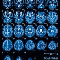 Blindsight: Can a strange neurological condition explain consciousness?