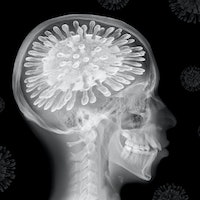 The pandemic is changing our brains — how to reverse the effects