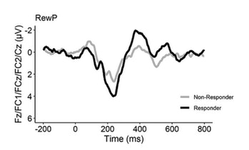 electroencefalogramă-depresie