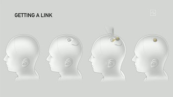 A diagram of a Neuralink being implanted