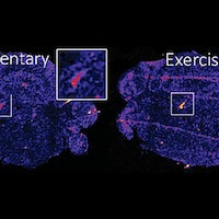 Brain study reveals one type of exercise increases stress resilience
