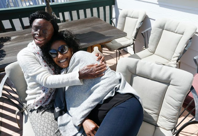 Atsede Niguse, left, hugs Menbere Aklilu on the deck at Aklilu's home in Richmond, California, in 2019. Niguse was severely burned and blinded when her former husband threw acid on her in Ethiopia. She's been living with Aklilu for eight months.