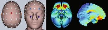 brain stimulation ocd