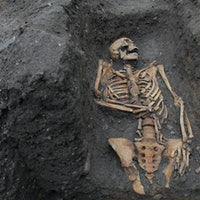 X-ray analysis reveals one grisly truth about Medieval life
