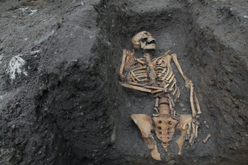 cambridge skeleton trauma