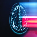 Before implanting a deep brain stimulation device, the patient's brain activity was mapped to determ...