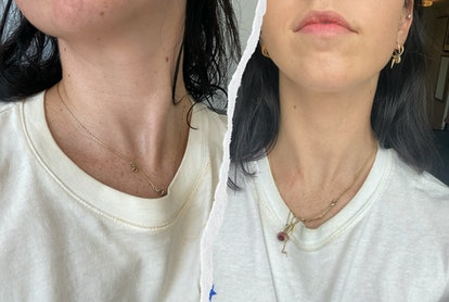 Before and after regular use of SkinMedica's Neck Correct Cream.
