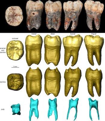 3D Neanderthal tooth