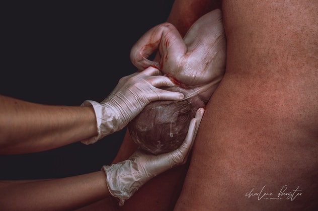 Two gloved hands guide a newborn into the world.