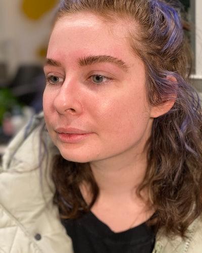 Kelsey Stewart's skin