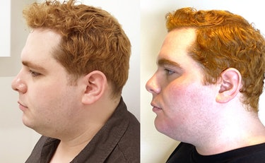 Before and after of TruSculpt