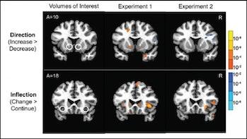 brain, brain scans