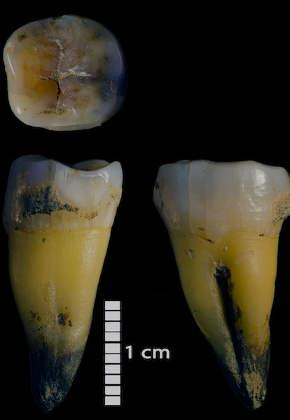 Second lower molar of a modern human found in Bacho Kiro Cave in the Main sector (ID: F6-620, Layer J- upper part), associated with the Initial Upper Palaeolithic stone tools.