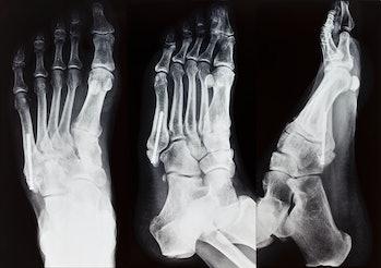 foot, X-ray