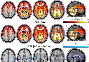psilocybin brain
