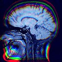 Here's what LSD, MDMA, ketamine, and magic mushrooms do to your brain