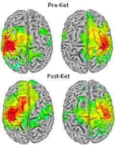 brain on ketamine