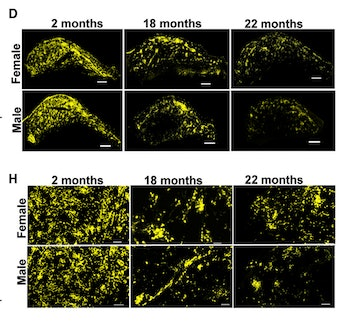 Imaging in mouse brain shows less neural progenitor cells in aging males vs. females