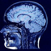 Teen cannabis use reveals how marijuana can alter brain shape