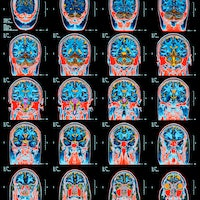 Molecular changes similar to Alzheimer's disease seen in brains with Covid-19