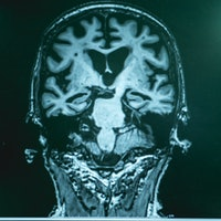 Two demographics may have increased risk for Alzheimer's, study finds